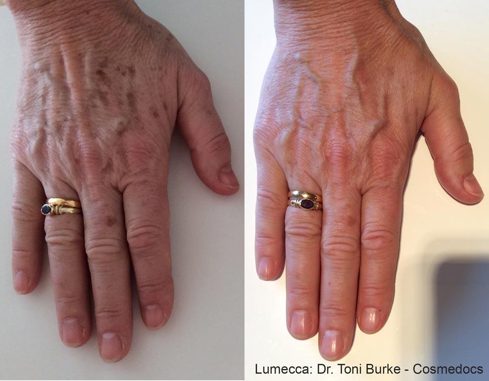 TB_Lumecca_Hands